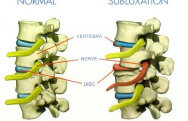 Subluxación vertebral: ¿qué es?